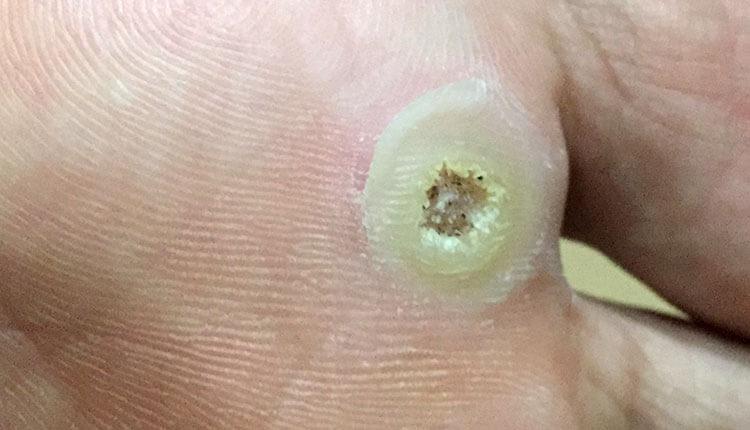 オーラク膏H使用後の足裏のイボ