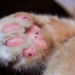 液体窒素(冷凍凝固法)による足裏のウイルス性イボ治療経過【治療中】