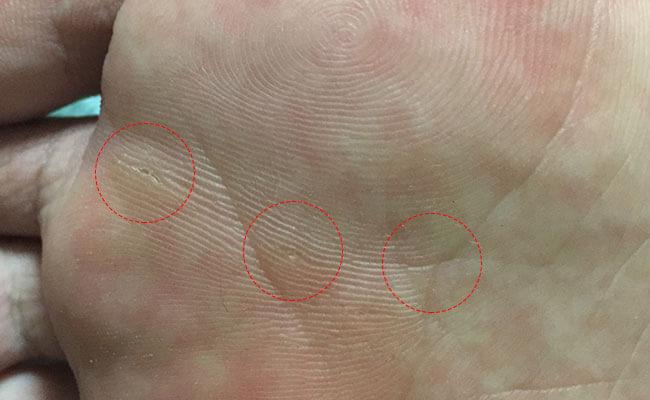かなり小さい足裏のイボ